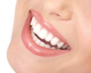 виниры реставрация зубов
