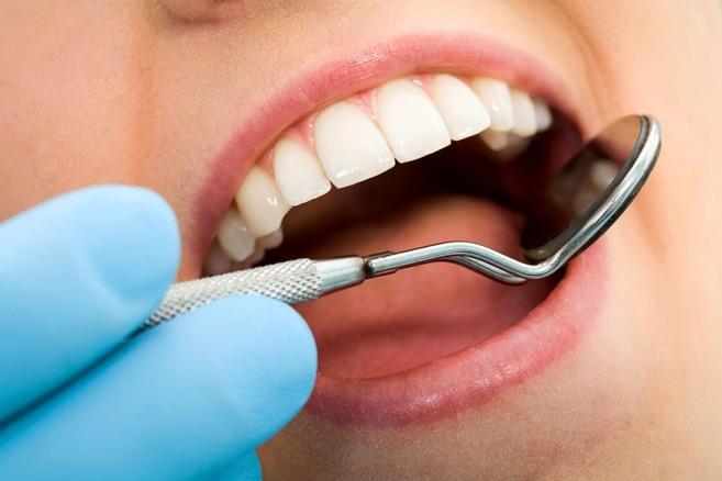 Лечение-зубов-в-кредит