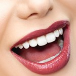 Преимущества лазерного отбеливания зубов