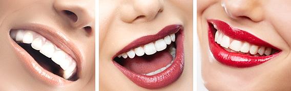 Преимущества-лазерного-отбеливания-зубов