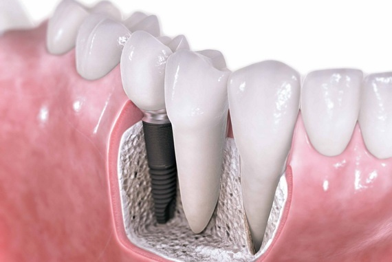 Как проводится имплантация зубов