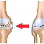 Артроз коленного сустава: профилактика и лечение