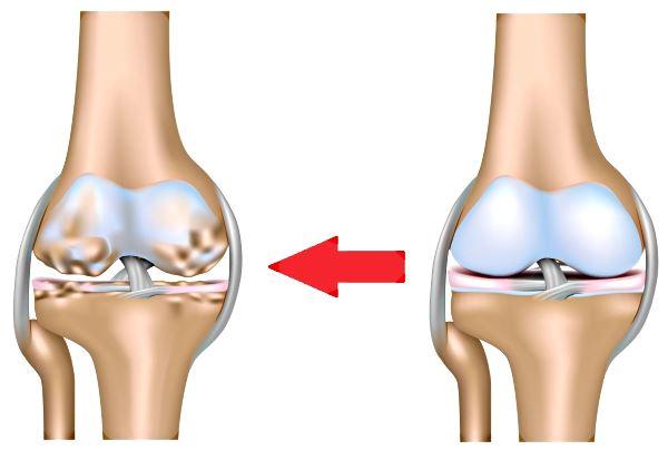 Artroz-kolennogo-sustava-lechenie