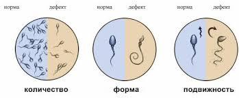 Электронная микроскопия сперматозоидов. Полезная информация
