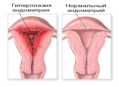 giperplaziya_endometriya
