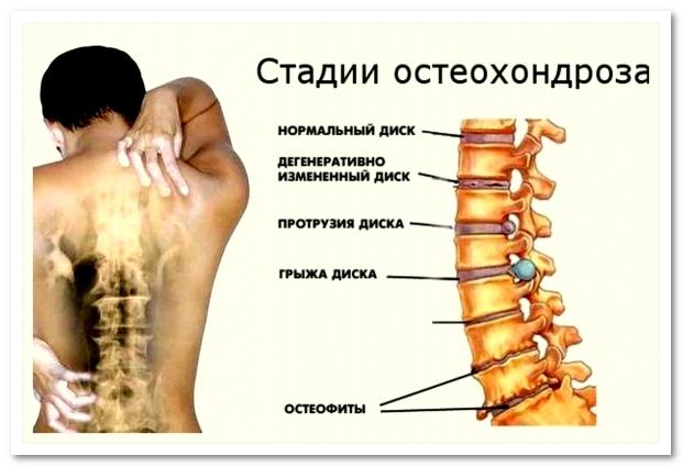 stadii-osteohondroza