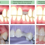 Восстановления зубов с помощью имплантов: этапы работы