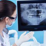 Телерентгенография челюсти: в каких случаях проводится процедура