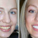 Как ставятся виниры на зубы?