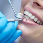 Услуги профессиональной стоматологии зубов
